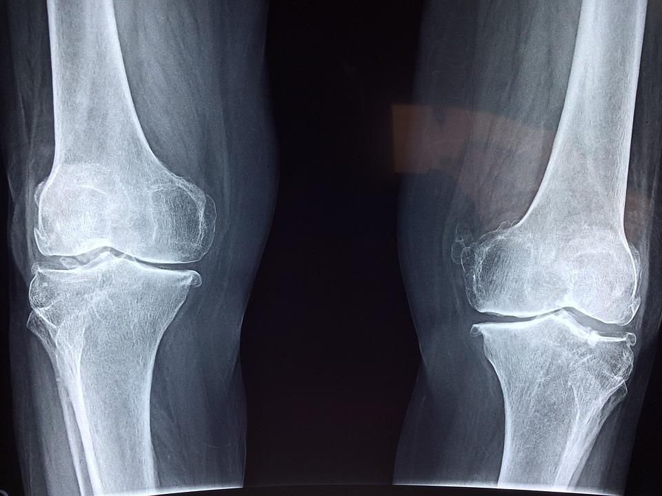 artroza jakie badania durere în articulația degetului arătător al dreptului